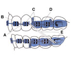diagram of braces